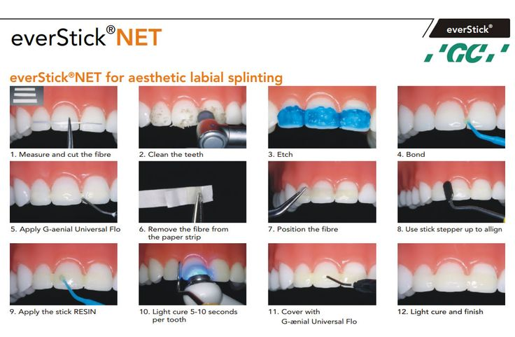 dental fibre post instructions