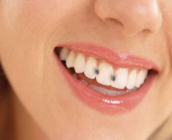 crystal innovations teeth whitening instructions